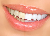 Teeth Whitening Escondido CA | Dentist